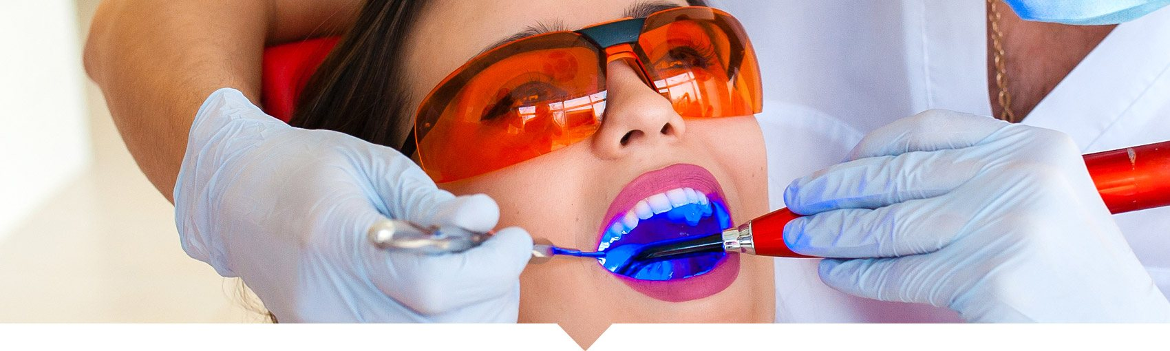 Gum Disease Laser Therapy, CA