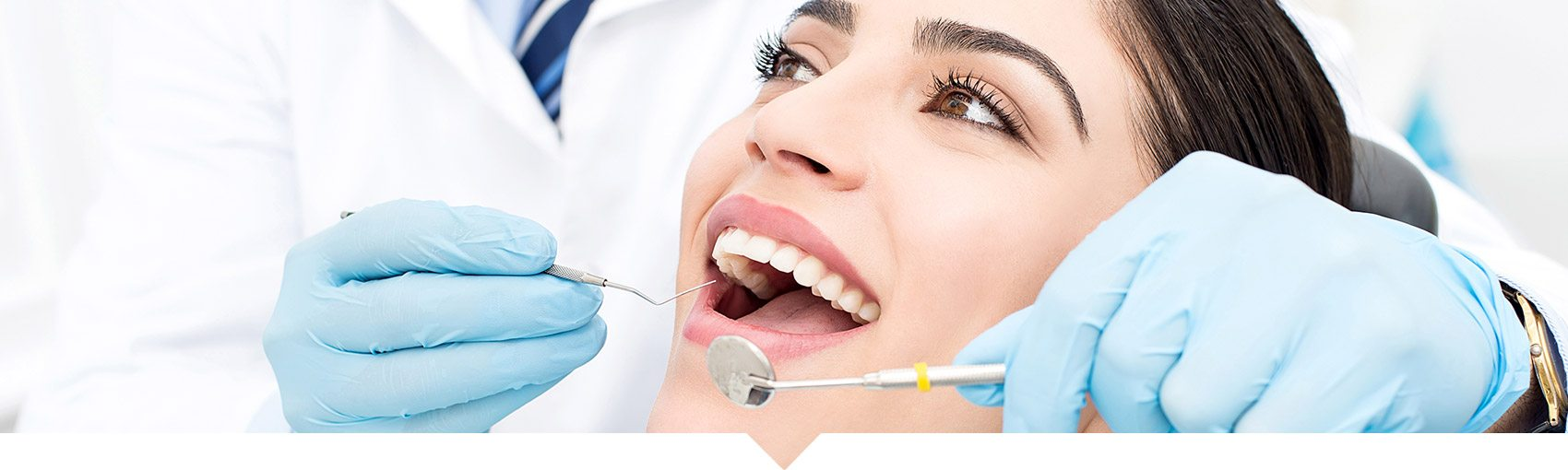 Tooth Extractions, CA