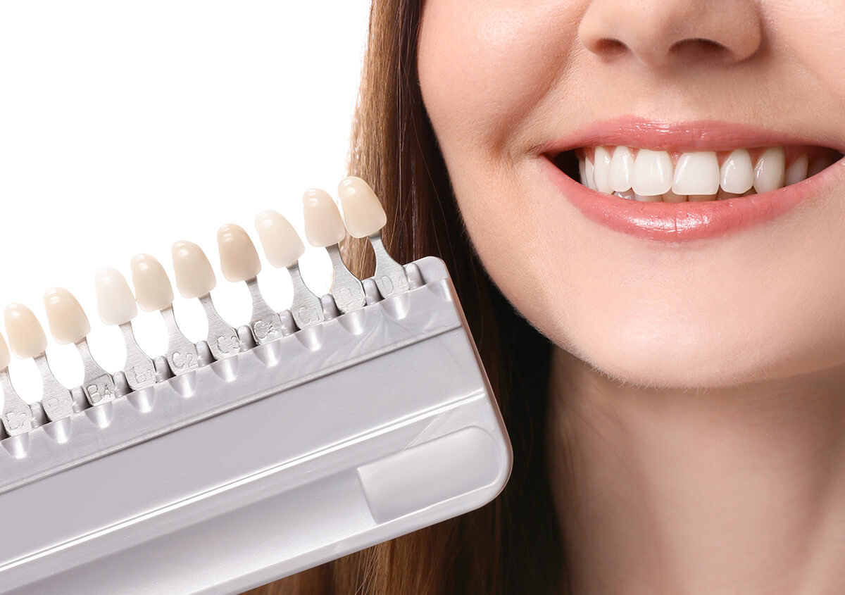 Patients in Ontario, CA Area, are Stunned by The Simplicity of Receiving Porcelain Veneers for Teeth