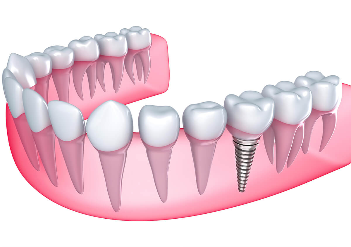 Dental Implants Provide a Lifelong Solution for Missing Teeth in Ontario, CA.