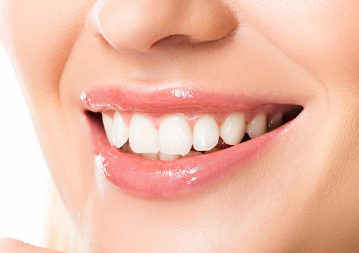 Keep Your Teeth Healthy: Dental Hygiene Tips in Ontario CA Area