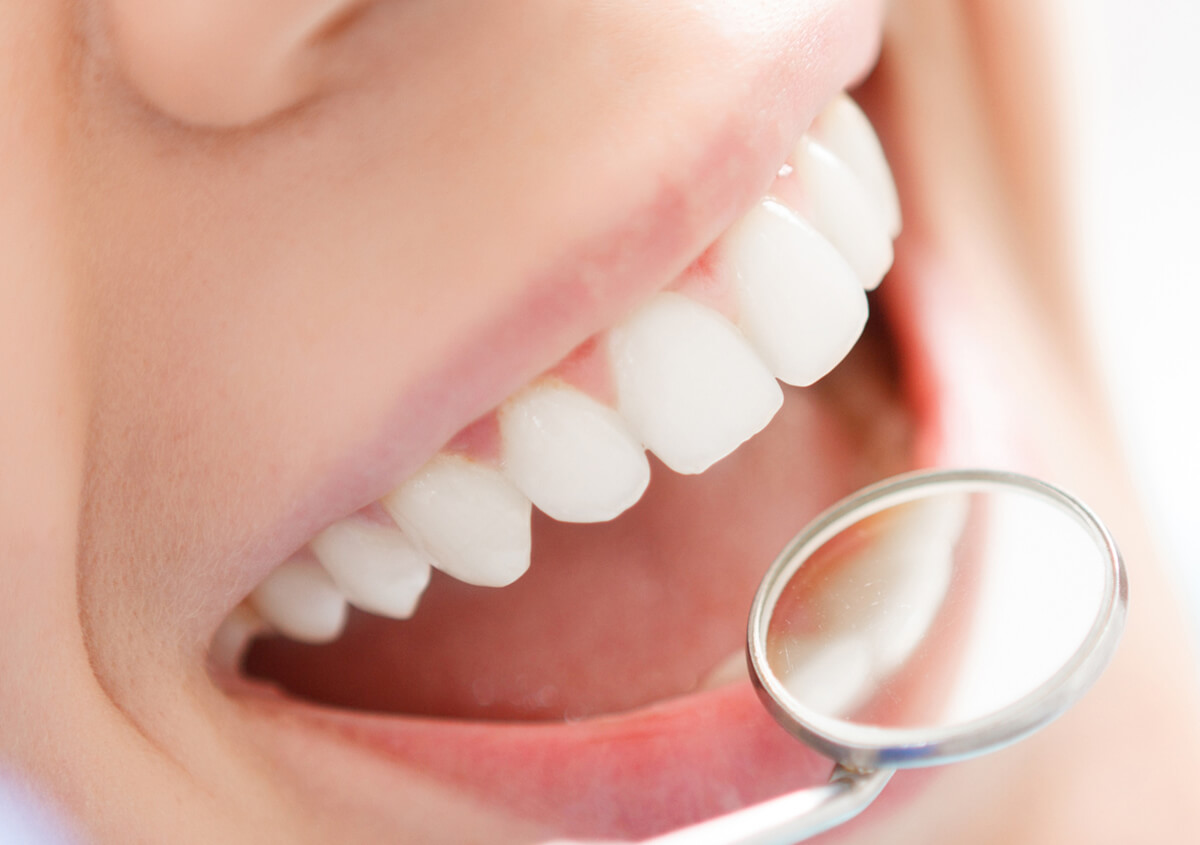 Porcelain Veneers offered by a dentist in Ontario, CA, are more popular than ever before
