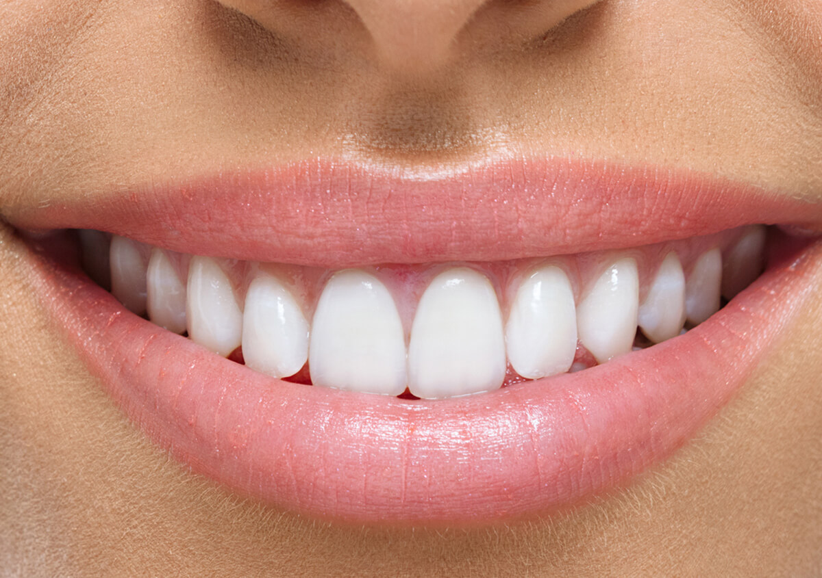 Patients in Ontario, CA Are Enjoying Some of the Less Noticeable Benefits Offered by Teeth Whitening